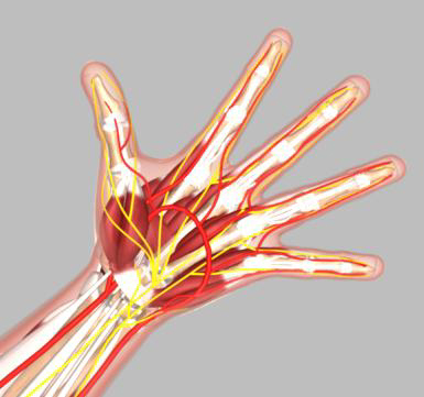 Hand Surgery Memphis Wrist Fracture Memphis Wrist Arthroscopy