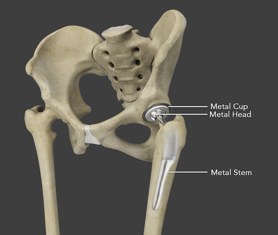 Total Hip Replacement Surgery Memphis Hip Surgery Memphis
