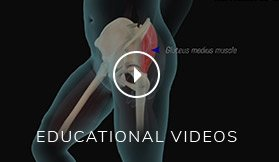 patient  education Video